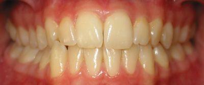 Foto 52 de Dentistas en La Eliana | Centro Odontológico La Eliana