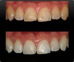 Foto 12 de Dentistas en La Eliana | Centro Odontológico La Eliana
