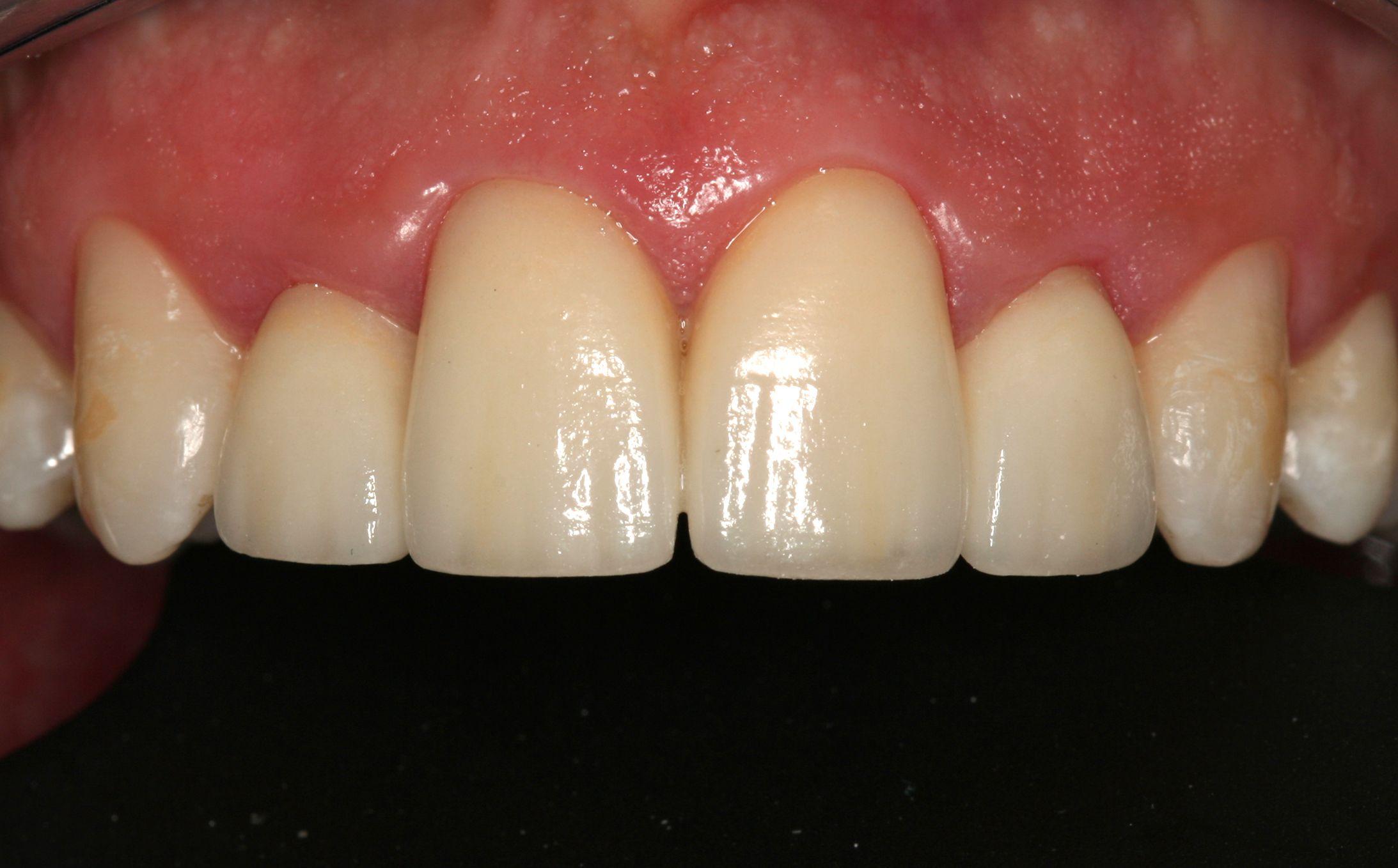 Carillas: Tratamientos  de Centro Odontológico La Eliana