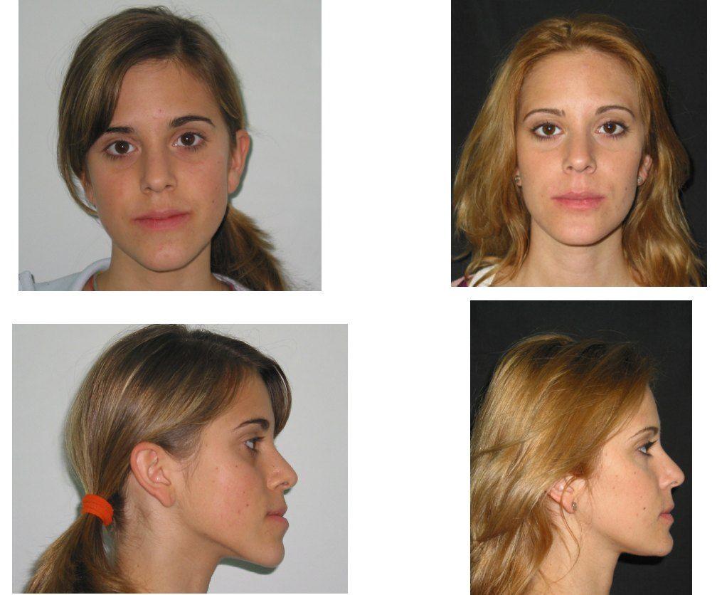 Foto 37 de Dentistas en La Eliana | Centro Odontológico La Eliana