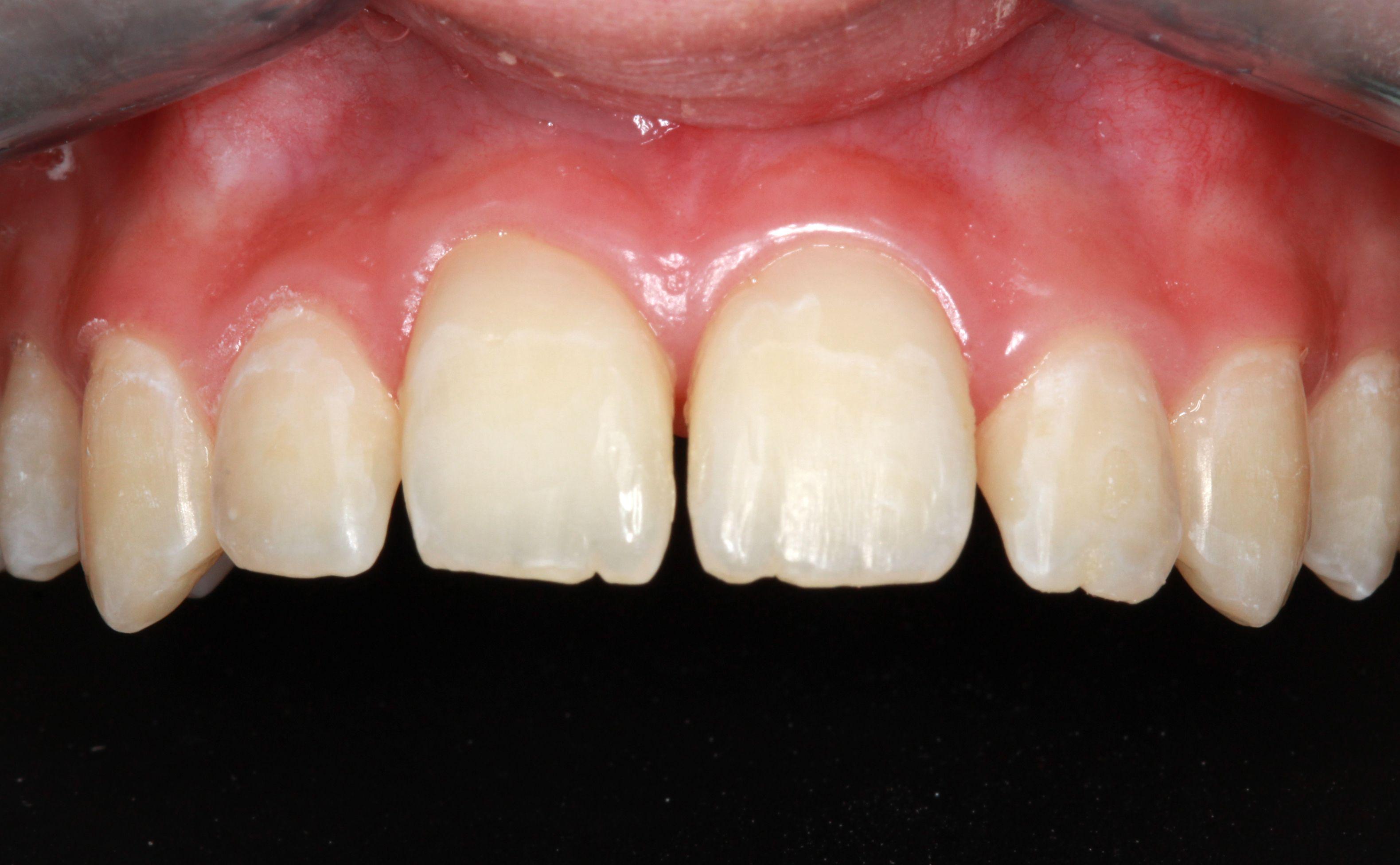 Foto 21 de Dentistas en La Eliana | Centro Odontológico La Eliana