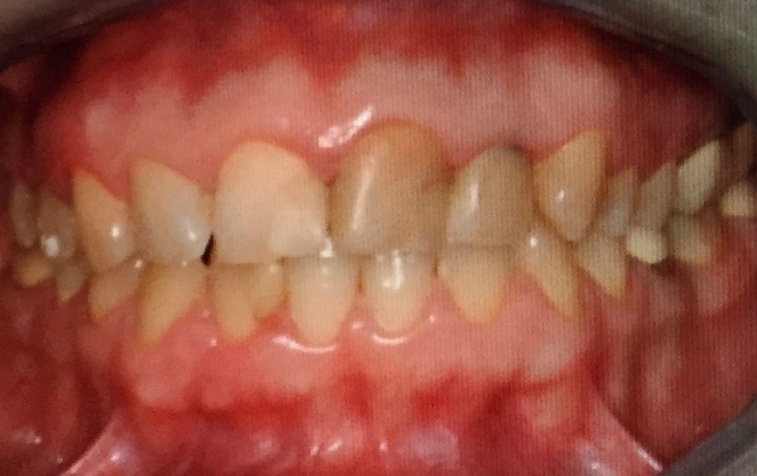 Foto 53 de Dentistas en La Eliana | Centro Odontológico La Eliana