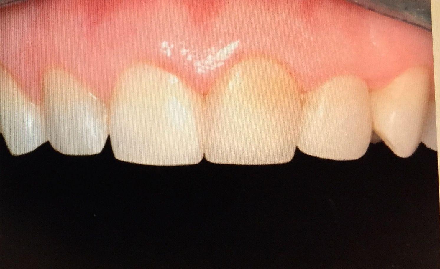 Caso específico: Tratamientos  de Centro Odontológico La Eliana