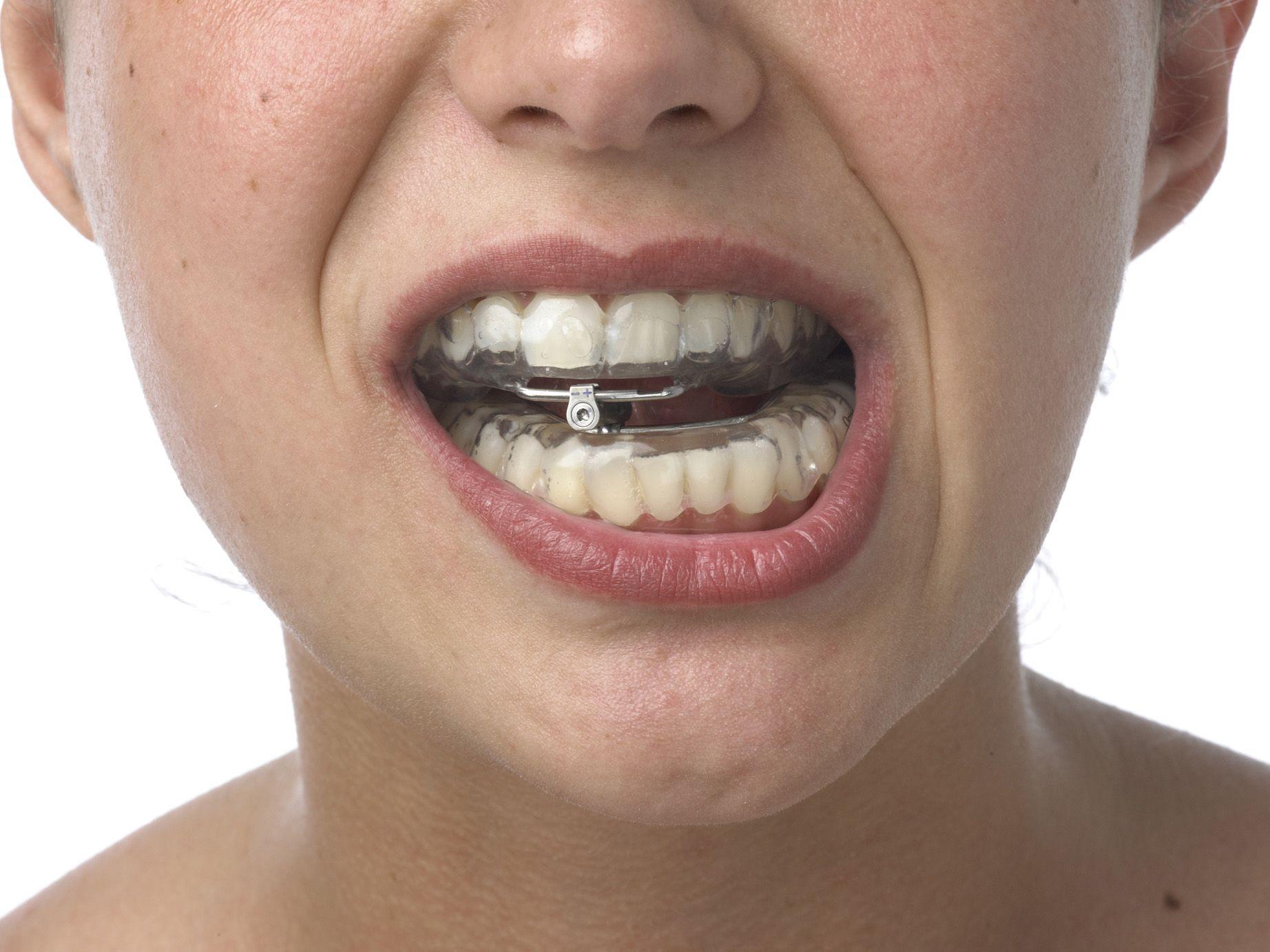 Férula dental: Tratamientos de Centro Dental Ortodoncia Dra. López