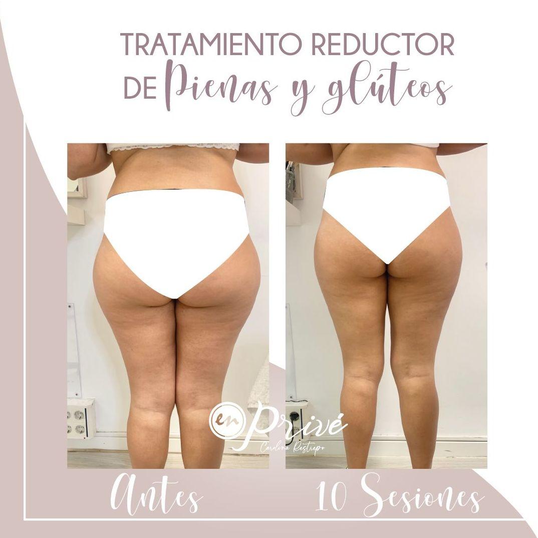 Tratamiento reductor de piernas y glúteos - 10 Sesiones