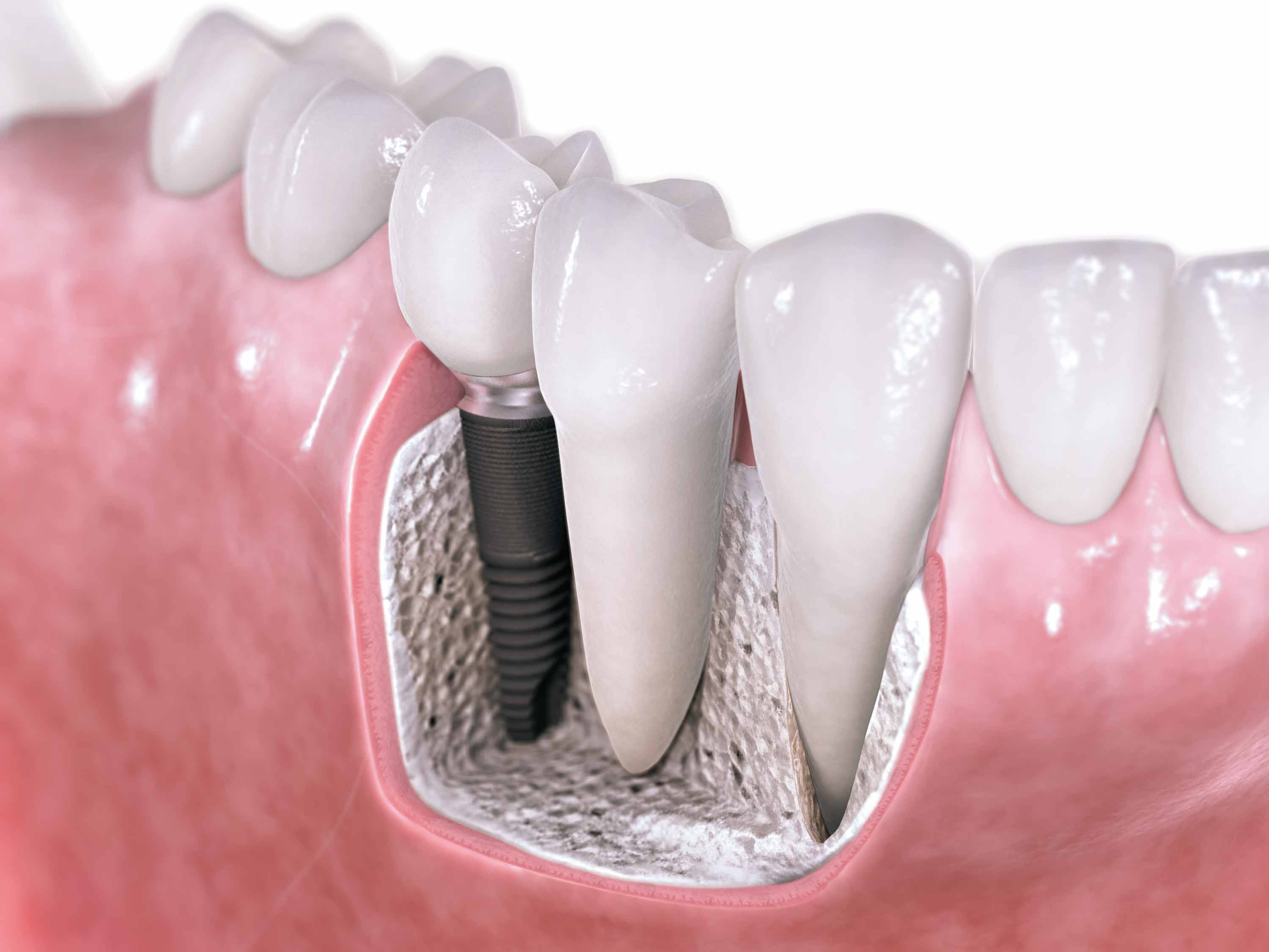 Implantes: Servicios de Clínica Dental Begoña Irigaray