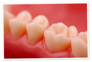 Foto 6 de Dentistas en Peralta   Clínica Dental Begoña Irigaray