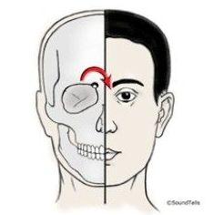 Terapias naturales para dolores de cabeza y migraña