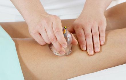 Tratamiento de masaje con Ventosas y auriculo: Servicios de Jull Acupuntura