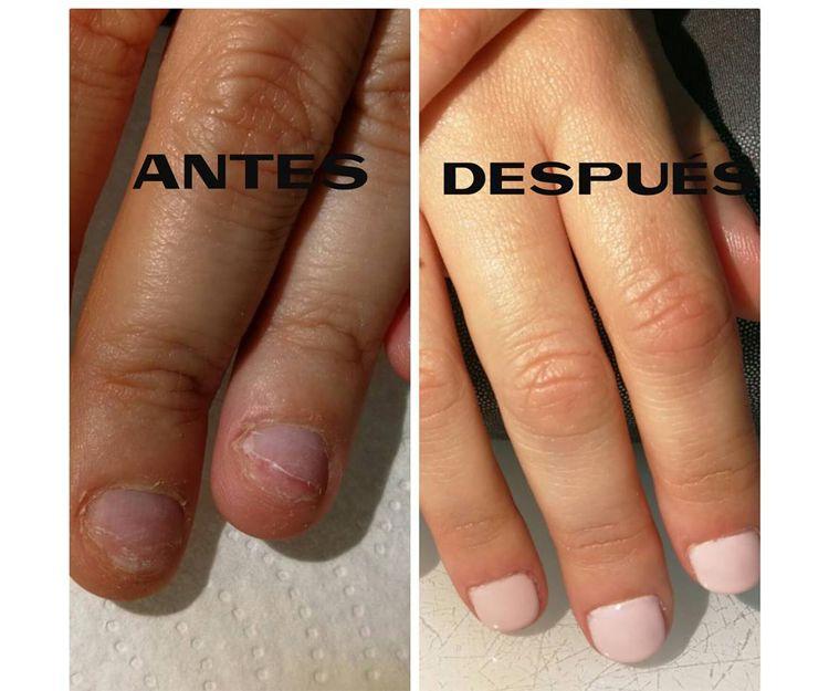 Tratamiento para lucir unas uñas bonitas