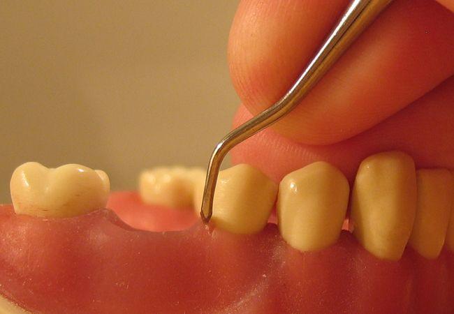 Periodoncia: Servicios de Clínica Dental Chantria