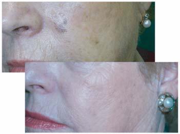 Foto 3 de Médicos especialistas Dermatología y Venereología en Barcelona | Centro Dermatológico Dr. Javier Bassas