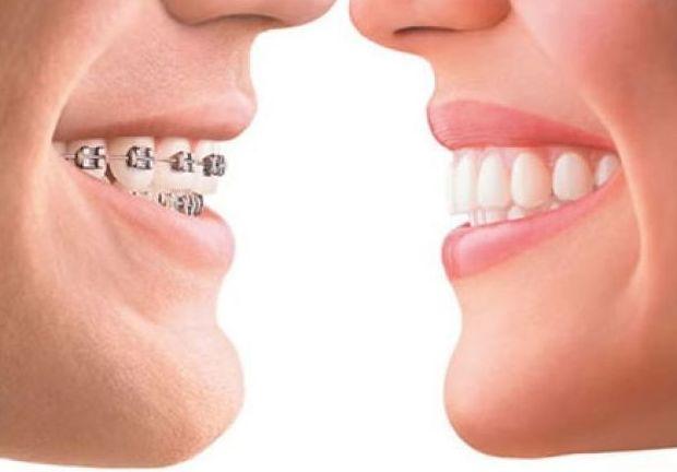 ortodoncistas burgos