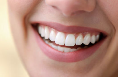blanqueamiento dental burgos