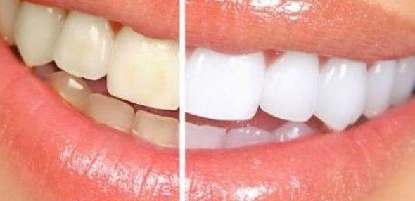 Estética dental Amurrio