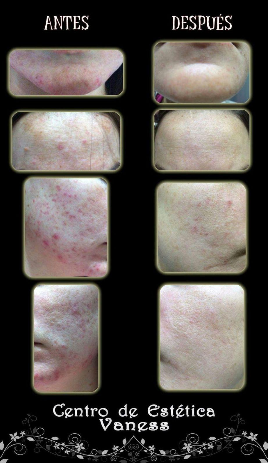 Tratamiento marcas y manchas sevilla