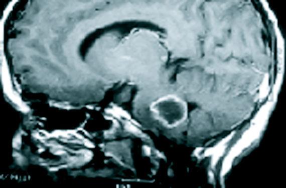 Foto 8 de Médicos especialistas Neurocirugía en Madrid | Doctor Villarejo