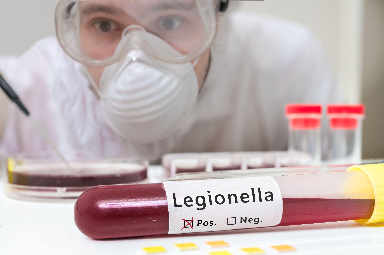 Legionella: Servicios de Control de plagas Equiluz