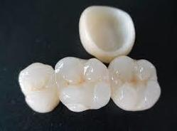 Corona zirconio: Tratamientos de Clínica Dental Tucán
