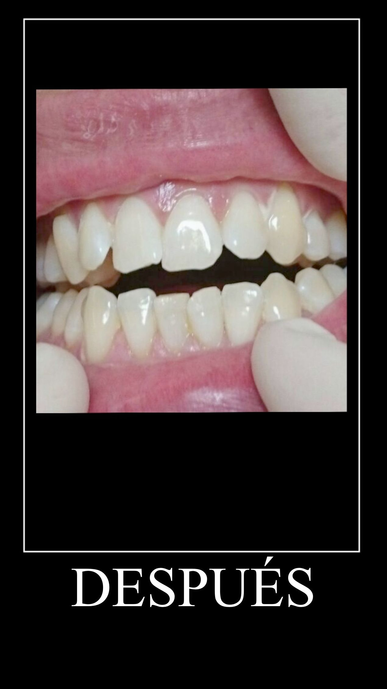 Blanqueamiento: Tratamientos de Clínica Dental Tucán