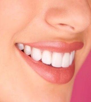 Limpieza: Tratamientos de Clínica Dental Tucán