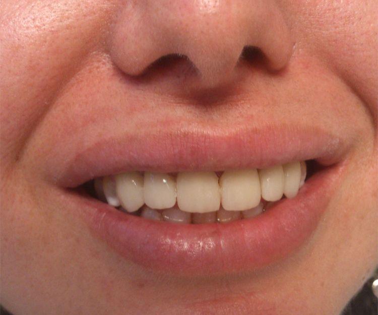 Tratamientos dentales en Tenerife Norte
