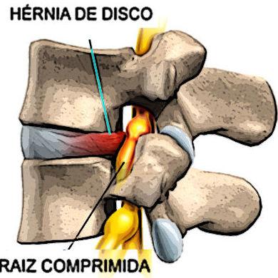 Tratamiento hernia de disco en Albacete