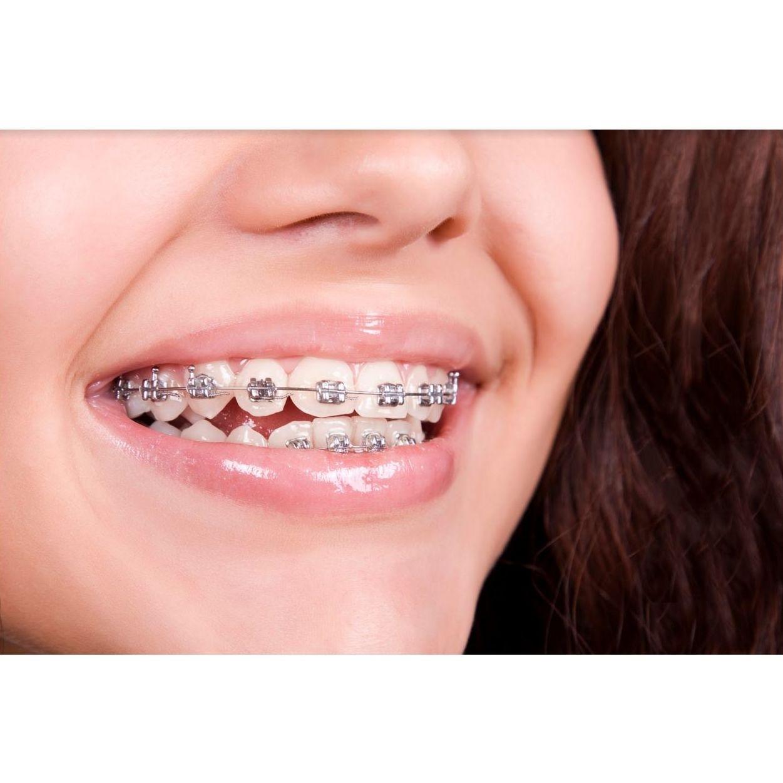 Ortodoncia: Tratamientos de Amalthea