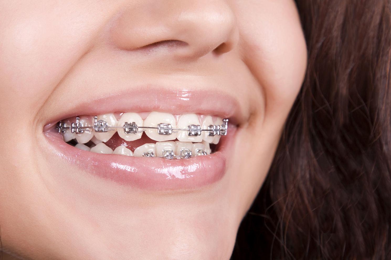 Ortodoncias en Álava