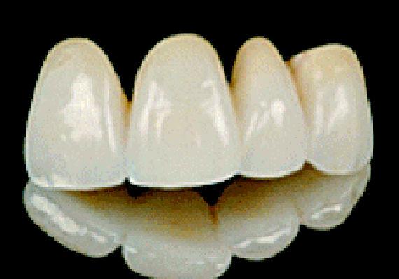 Foto 14 de Protésicos dentales en Valladolid | Provall Prótesis Valladolid