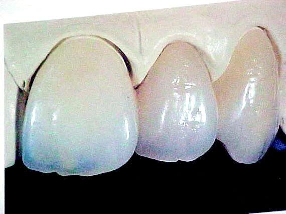 Foto 16 de Protésicos dentales en Valladolid | Provall Prótesis Valladolid