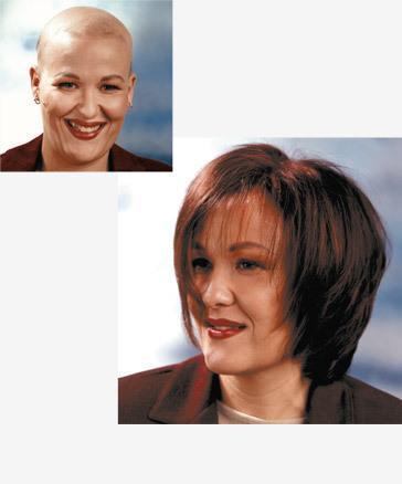 Pérdida de cabello en los tratamientos oncológicos