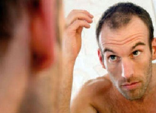 Alopecias: Tratamientos de Rueber