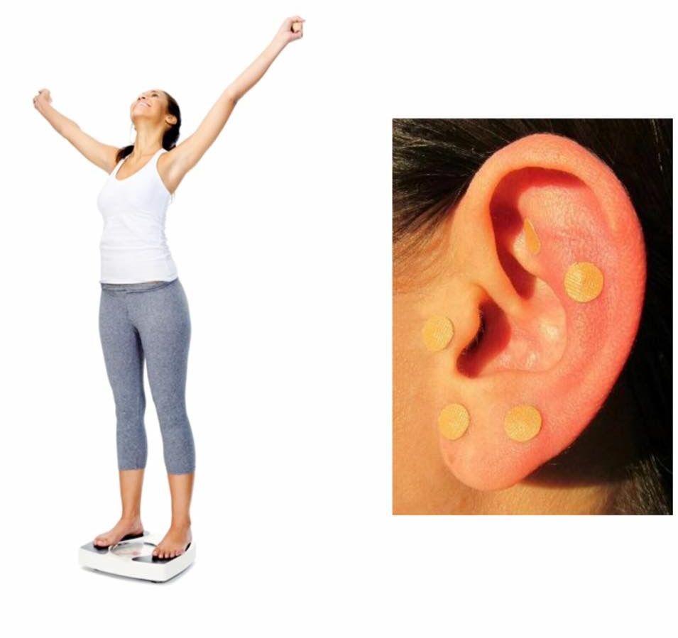 Medicina tradicional china (auriculoterapia), trata la ansiedad, el hambre, los nervios, la retención de líquidos...