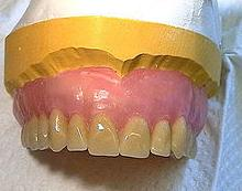 Prótesis: Servicios de Future Centros Dentales Avanzados