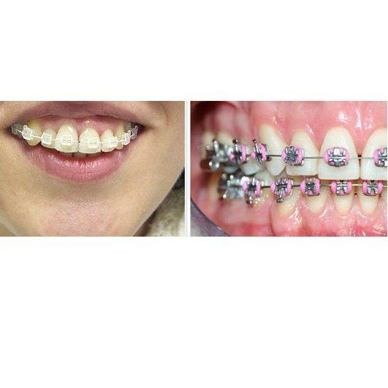 Ortodoncia: Especialidades de Clínica Dental Dres. Carrasco y García