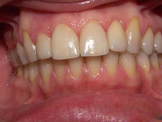 Foto 38 de Clínicas dentales en A Coruña | Clínica Dental Dres. Carrasco y García