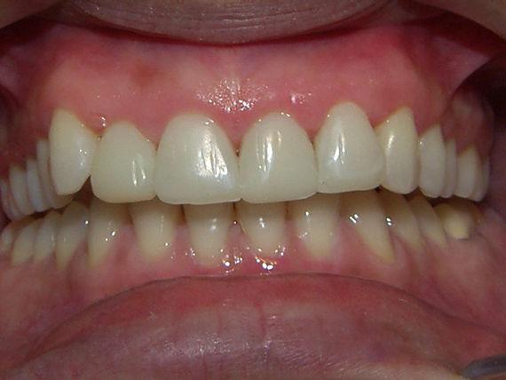 Foto 36 de Clínicas dentales en A Coruña   Clínica Dental Dres. Carrasco y García