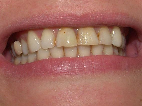 Foto 37 de Clínicas dentales en A Coruña | Clínica Dental Dres. Carrasco y García