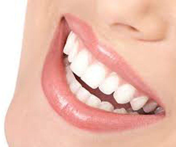 Tratamientos dentales en A Coruña