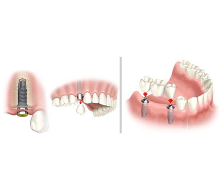 Implantes dentales en A Coruña