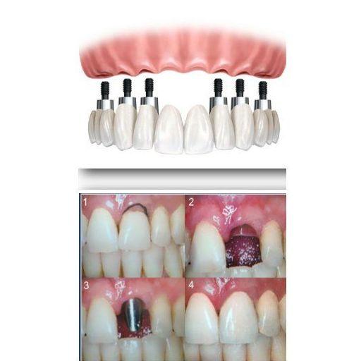 Prótesis: Especialidades de Clínica Dental Dres. Carrasco y García