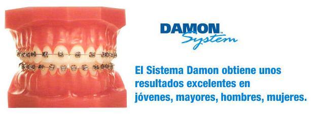 Ortodoncia sistema Damon