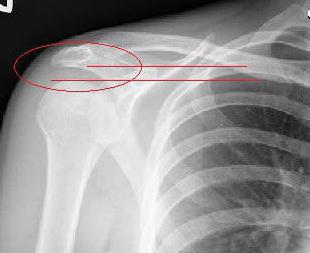 Dolor hombro. Síndrome subacromial