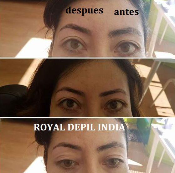 Foto 8 de Centros de estética en Móstoles   Royal Depil India