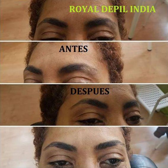 Foto 10 de Centros de estética en Móstoles | Royal Depil India