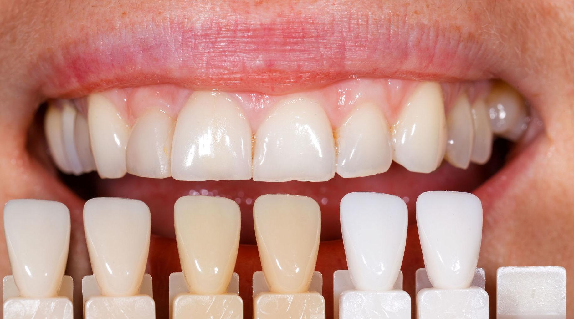 Estética dental: Servicios de Alfonso Ibáñez Fajardo