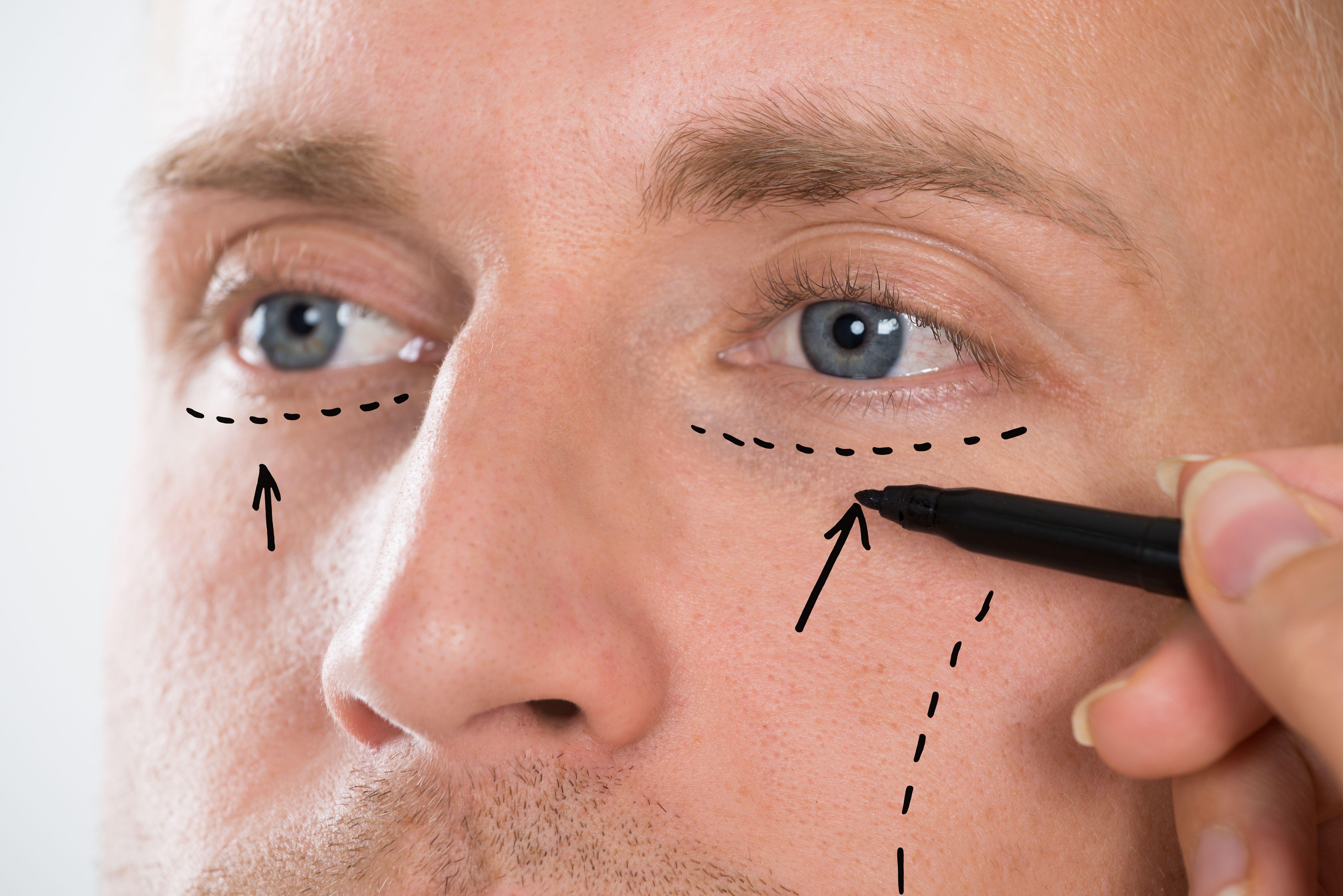 Relleno facial: Tratamientos de DERMALÁSER C & O