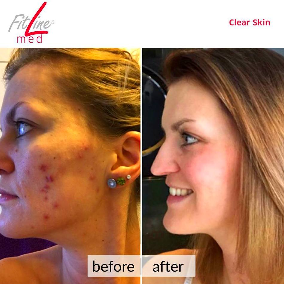 Fitline Med Clear Skin
