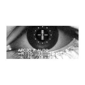 Ortoqueratología : Productos y servicios   de Centro Óptico Serrano